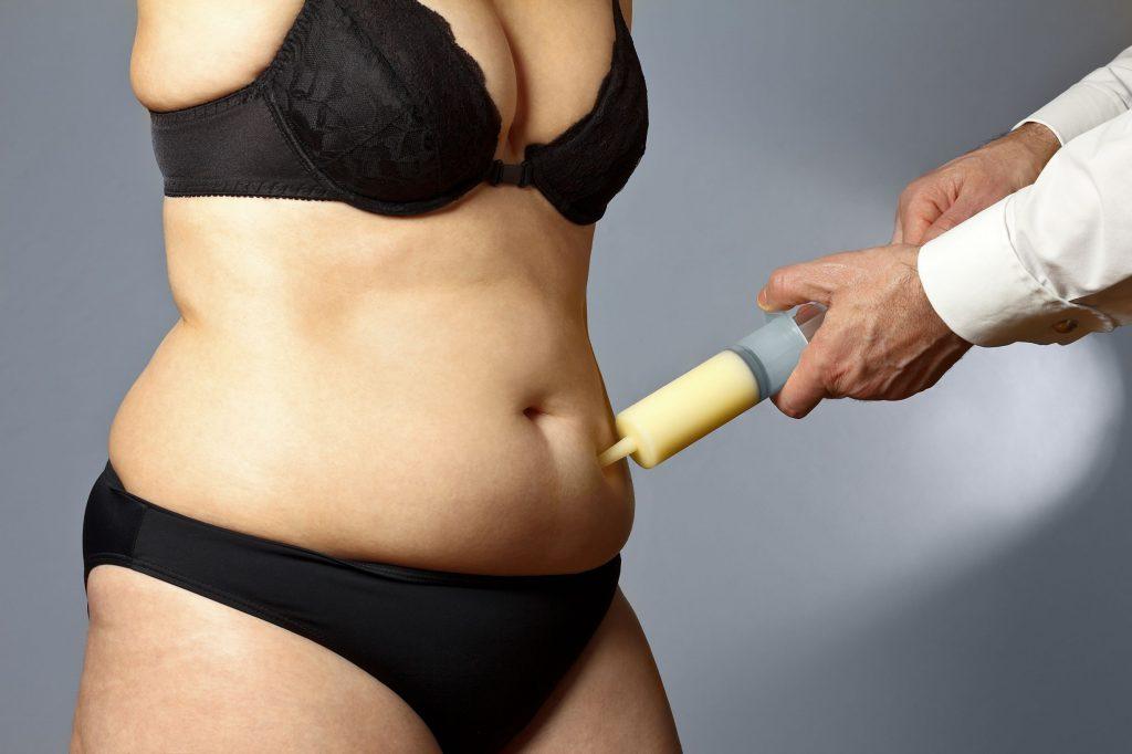 5 เรื่องที่สาวๆ ต้องรู้ ก่อนจะดูดไขมัน การทำศัลยกรรม ความสวยความงาม สุขภาพดี